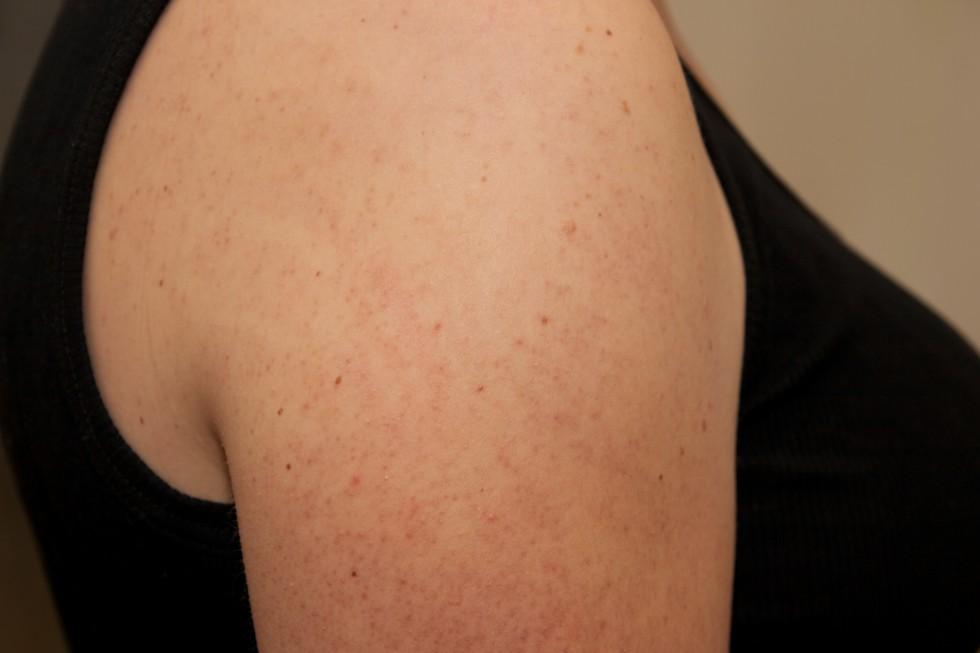 Keratosis pilaris - røde knopper på overarme, lår og